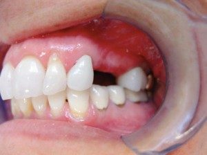 mini dental implants Columbus, OH